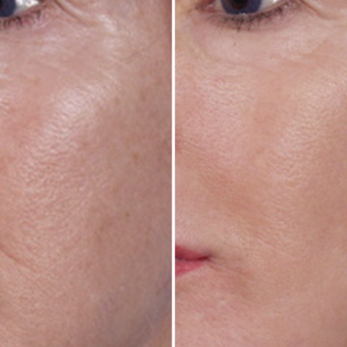 NLP_Before_After1